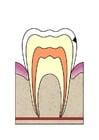 Bild Entwicklung Zahnfäule 2
