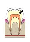 Bild Entwicklung Zahnfäule 3