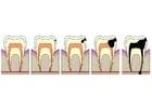 Bild Entwicklung Zahnfäule